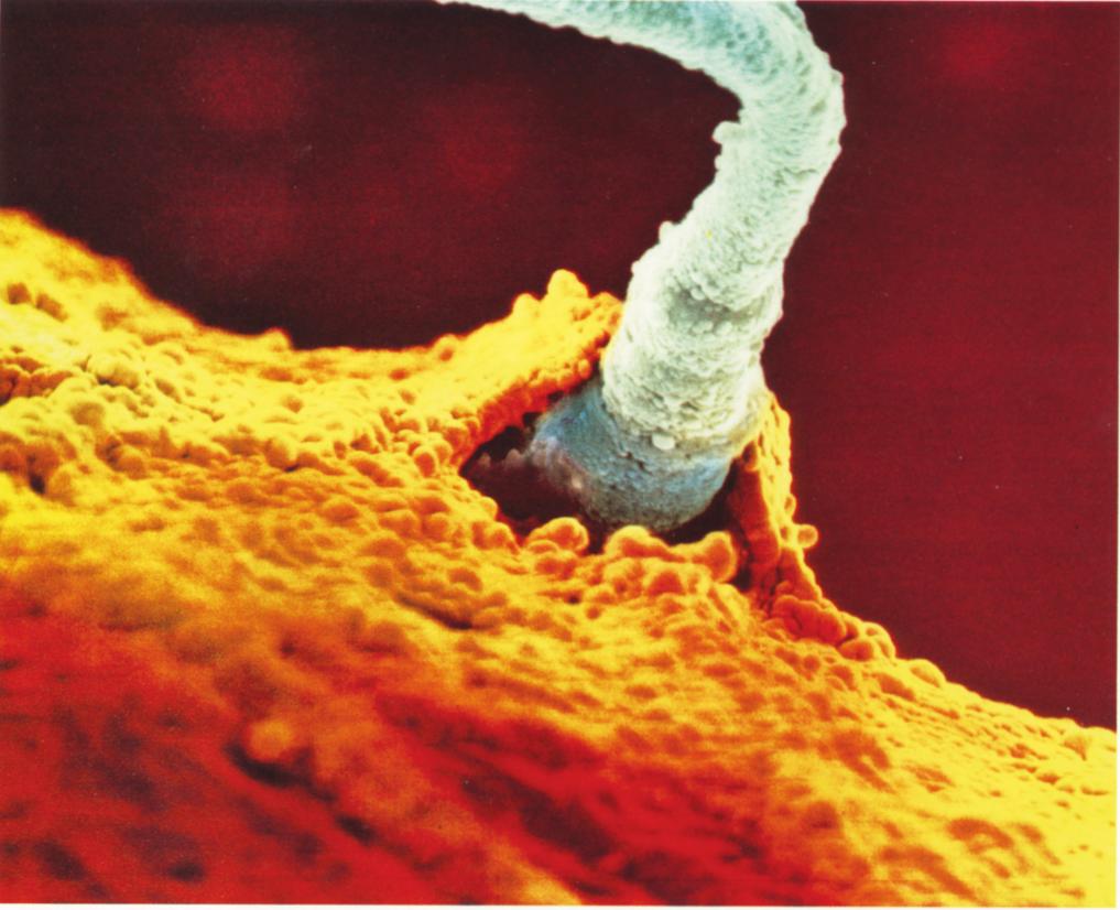 Her ses det afgørende øjeblik, hvor sædcellen er ved at trænge igennem æggets forsvar. Kort efter vil befrugtningen være fuldbyrdet. Hver gang dette sker, bliver et nyt menneske til, som er forskelligt fra alle andre mennesker. I befrugtningsøjeblikket fastlægges de arvelige egenskaber, og fra dette øjeblik føjes der intet nyt til. For at udvikle sig fra en encellet organisme til et voksent individ behøver det nye menneske kun ilt og næring.